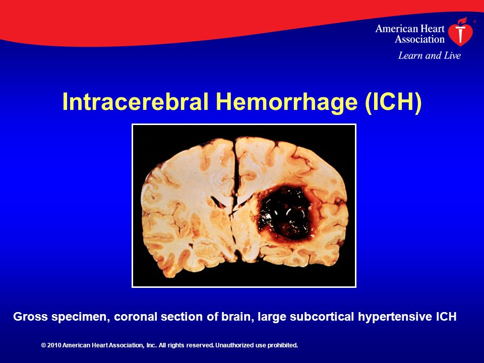 Intracerebral Hemorrhage (ICH)