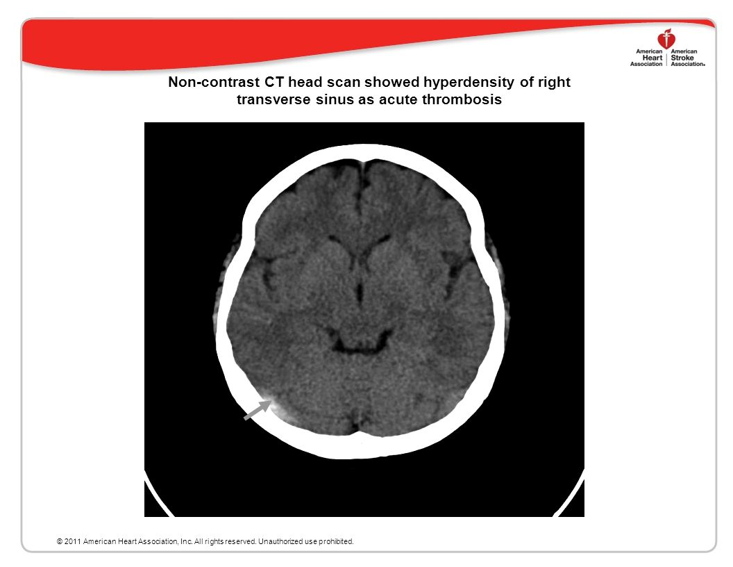 Non-contrast CT head scan showed hyperdensity of right transverse sinus as acute thrombosis