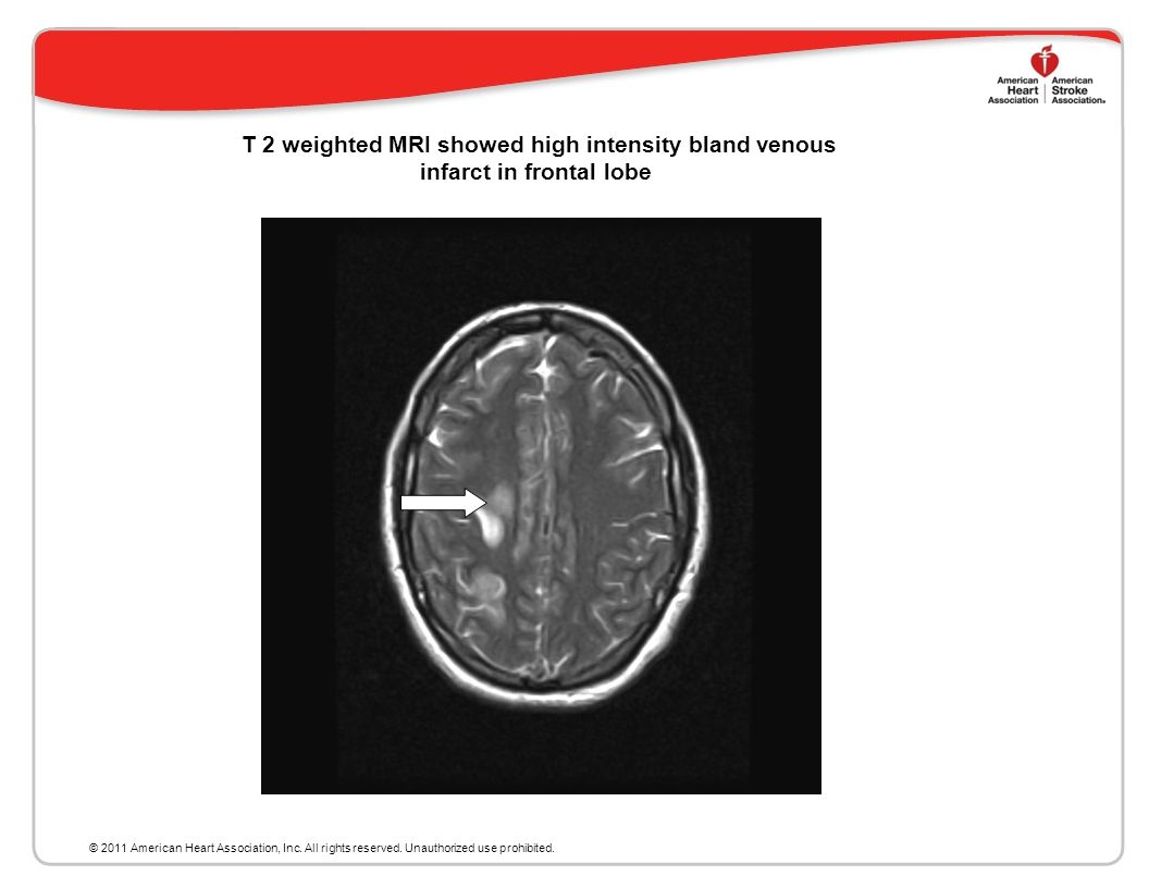 T 2 weighted MRI showed high intensity bland venous