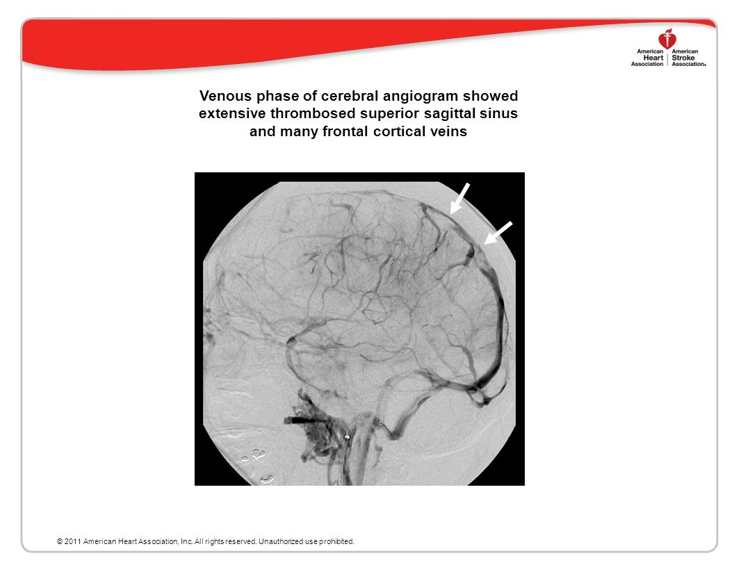 Venous phase of cerebral angiogram showed extensive thrombosed superior sagittal sinus and many frontal cortical veins