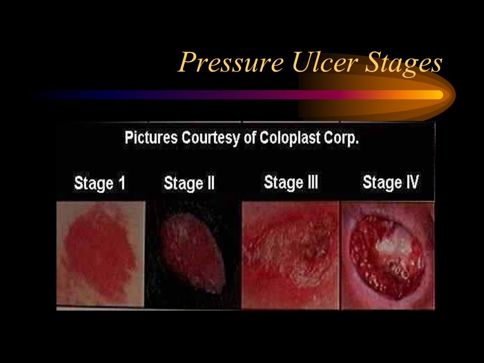 ahcpr guidelines for pressure ulcers