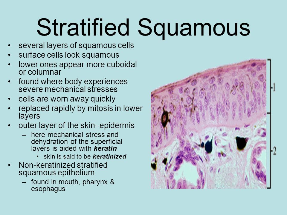 Stratified Squamous several layers of squamous cells