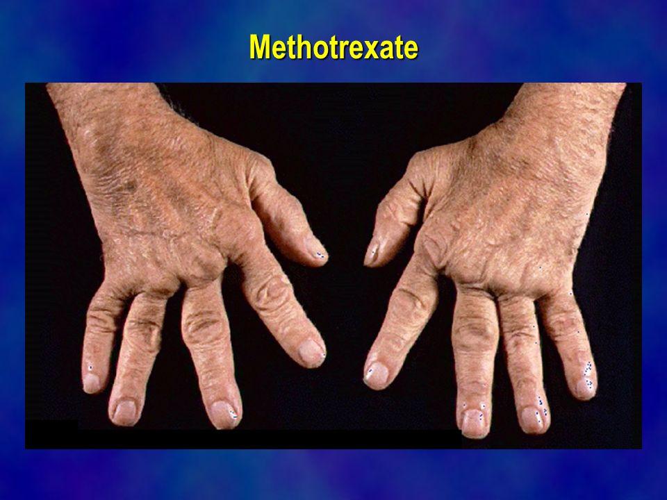 Methotrexate online