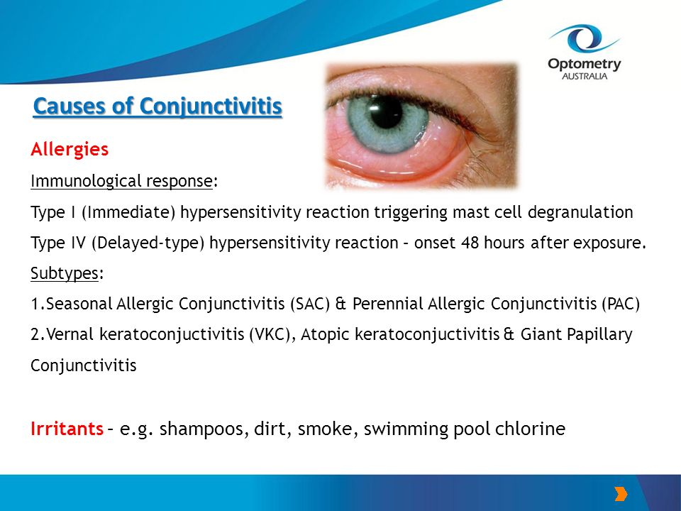 Common Eye Conditions And The Role Of The Pharmacist
