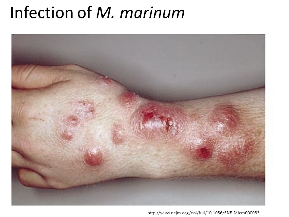 Infection of M. marinum