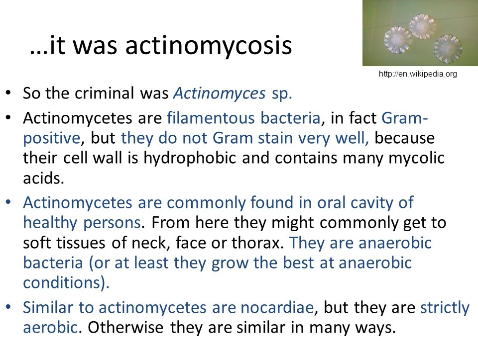 …it was actinomycosis So the criminal was Actinomyces sp.