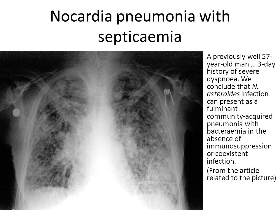 Nocardia pneumonia with septicaemia