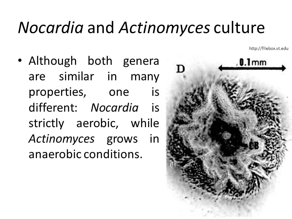 Nocardia and Actinomyces culture