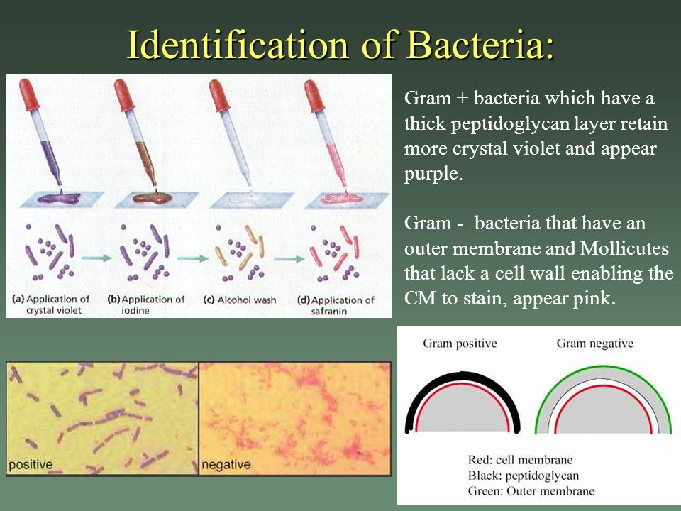 Identification of Bacteria: