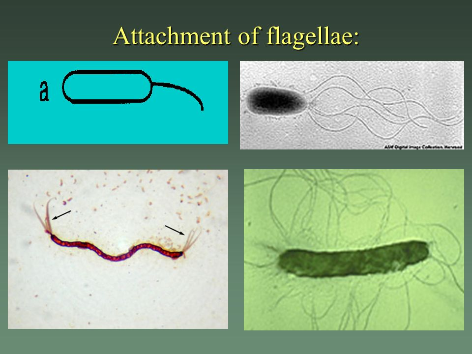 Attachment of flagellae:
