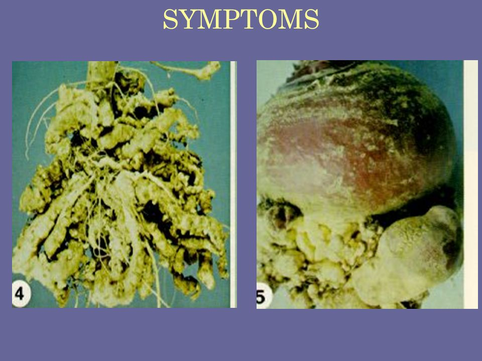 SYMPTOMS Clubroot of cabbage and rutabaga Plasmodiophora brassicae