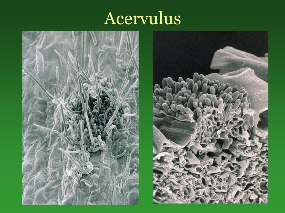 Acervulus
