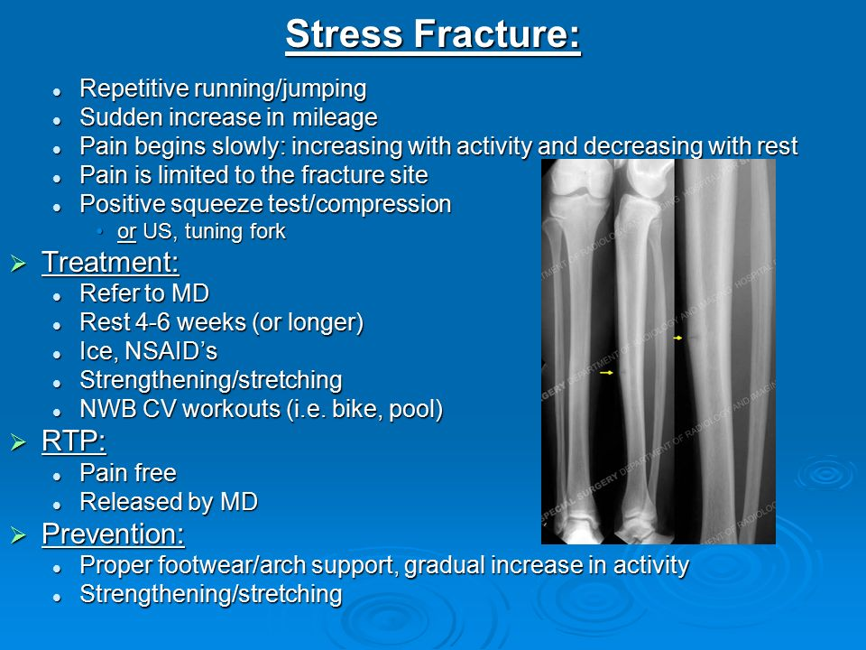 Injury Assessment Lower Extremity Ppt Video Online Download