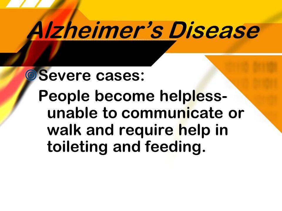 Alzheimer's Disease Severe cases: