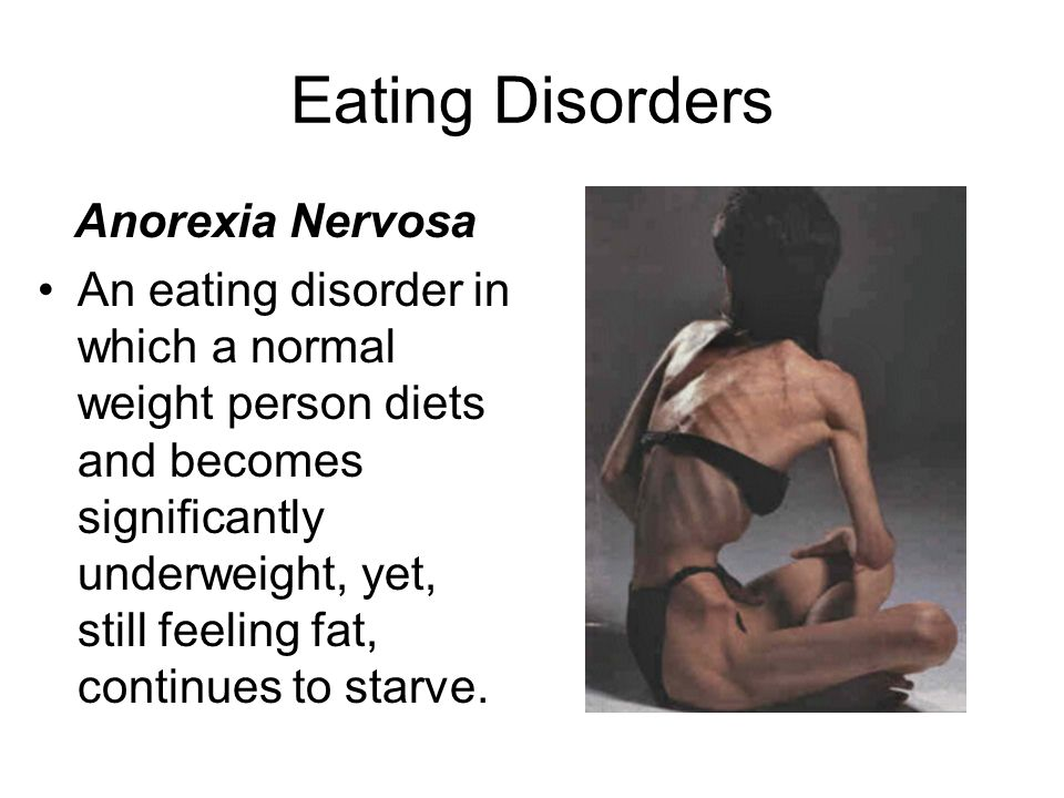 Eating Disorders Anorexia Nervosa