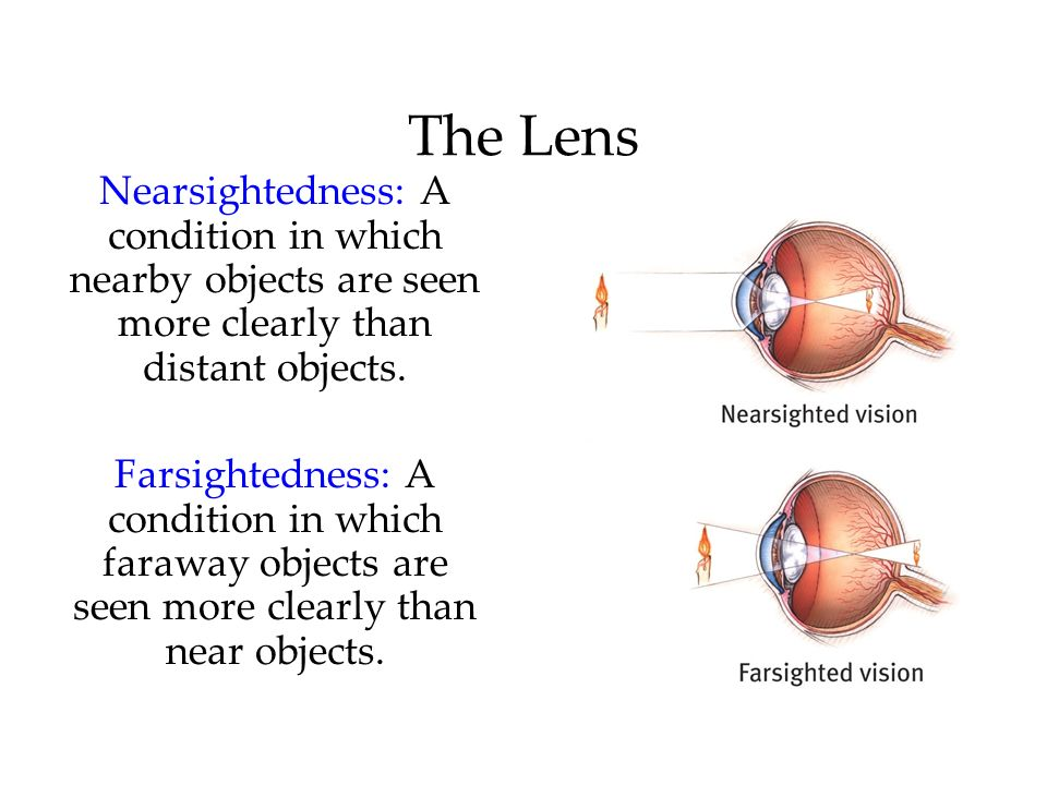 The Lens Nearsightedness: A condition in which nearby objects are seen more clearly than distant objects.