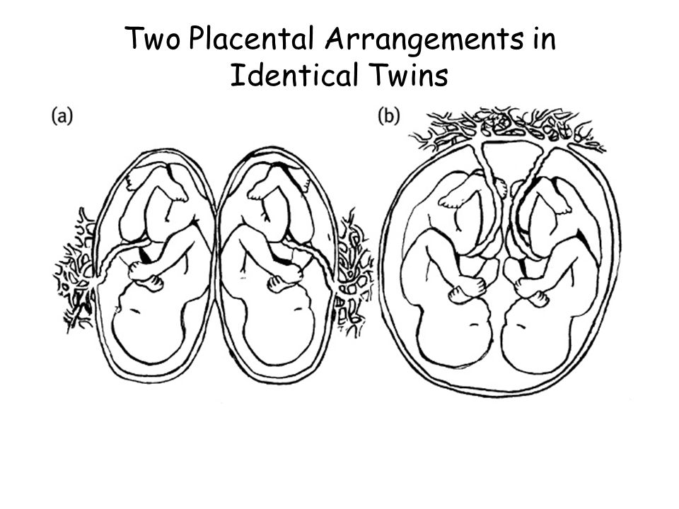 Two Placental Arrangements in Identical Twins