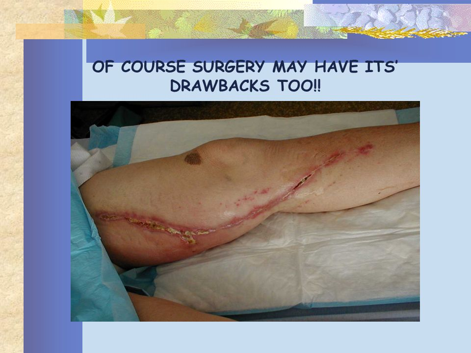 OF COURSE SURGERY MAY HAVE ITS' DRAWBACKS TOO!!