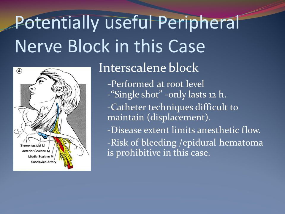 Potentially useful Peripheral Nerve Block in this Case