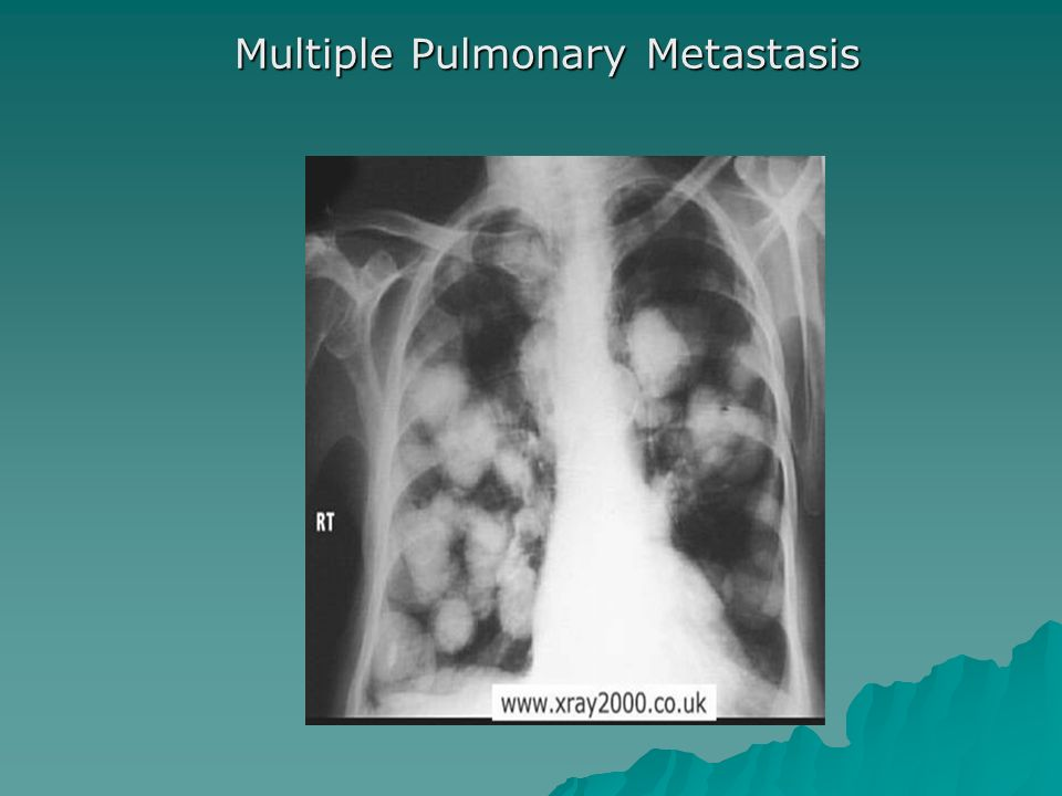 Multiple Pulmonary Metastasis