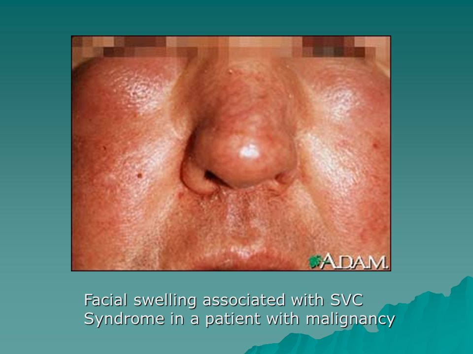Facial swelling associated with SVC Syndrome in a patient with malignancy