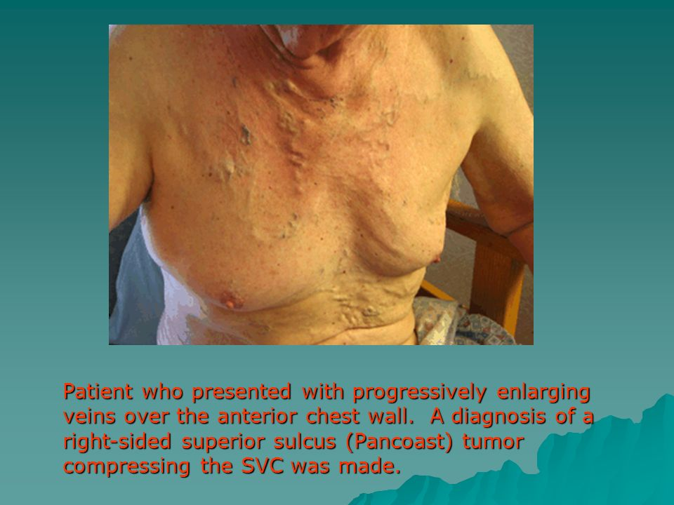 Patient who presented with progressively enlarging veins over the anterior chest wall.