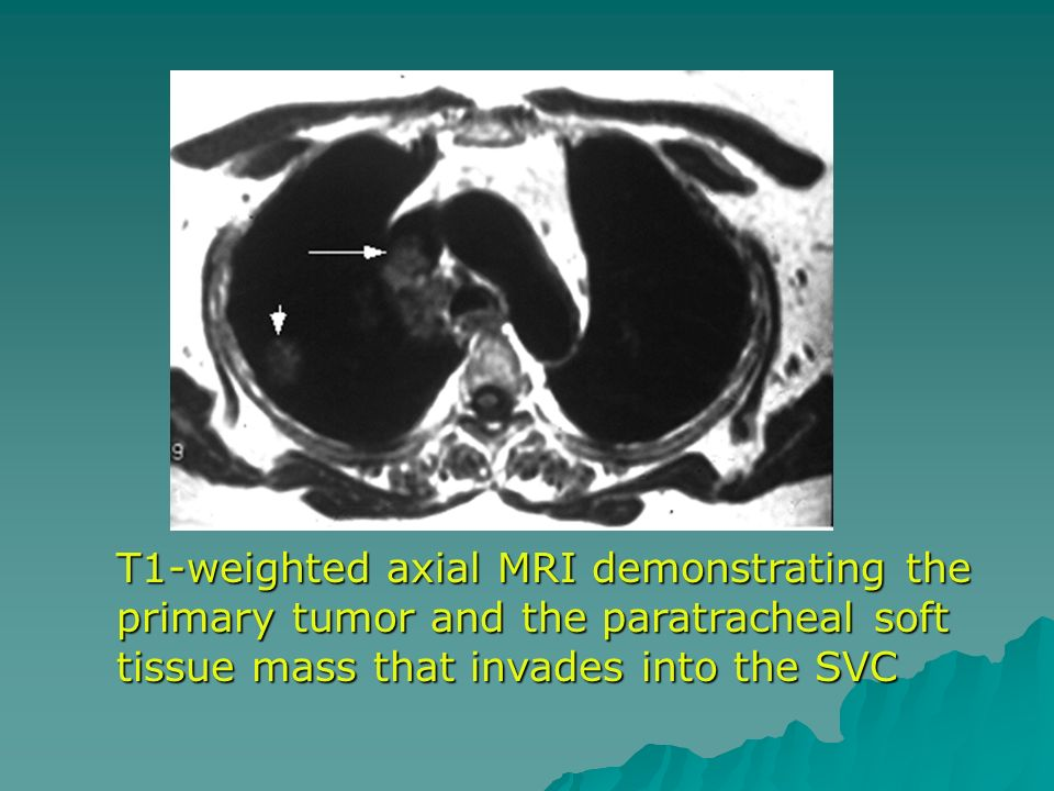 T1-weighted axial MRI demonstrating the primary tumor and the paratracheal soft tissue mass that invades into the SVC
