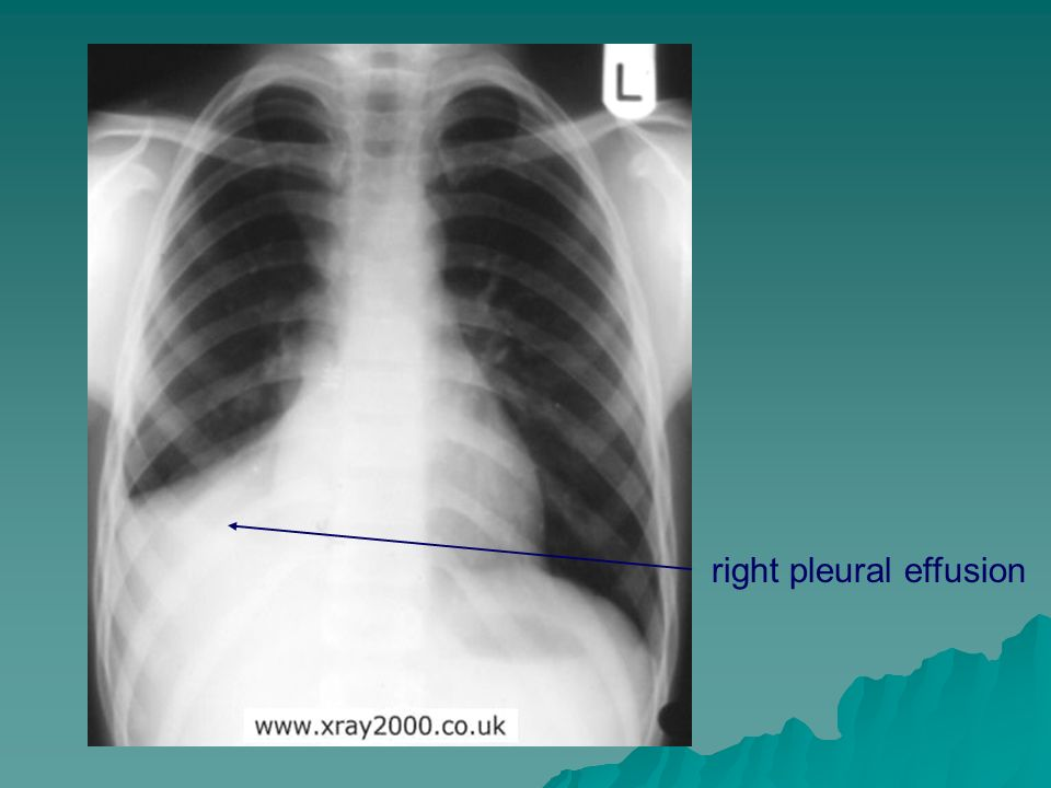 right pleural effusion
