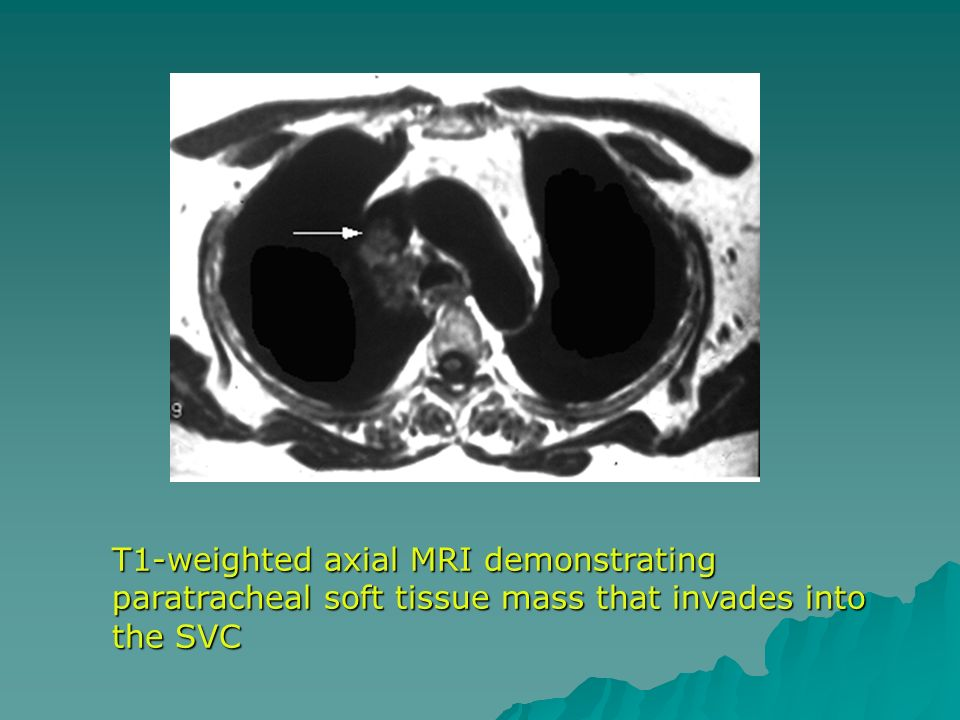 T1-weighted axial MRI demonstrating paratracheal soft tissue mass that invades into the SVC