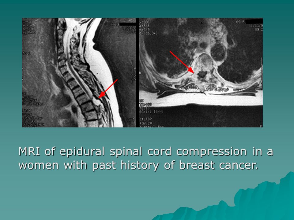 MRI of epidural spinal cord compression in a women with past history of breast cancer.