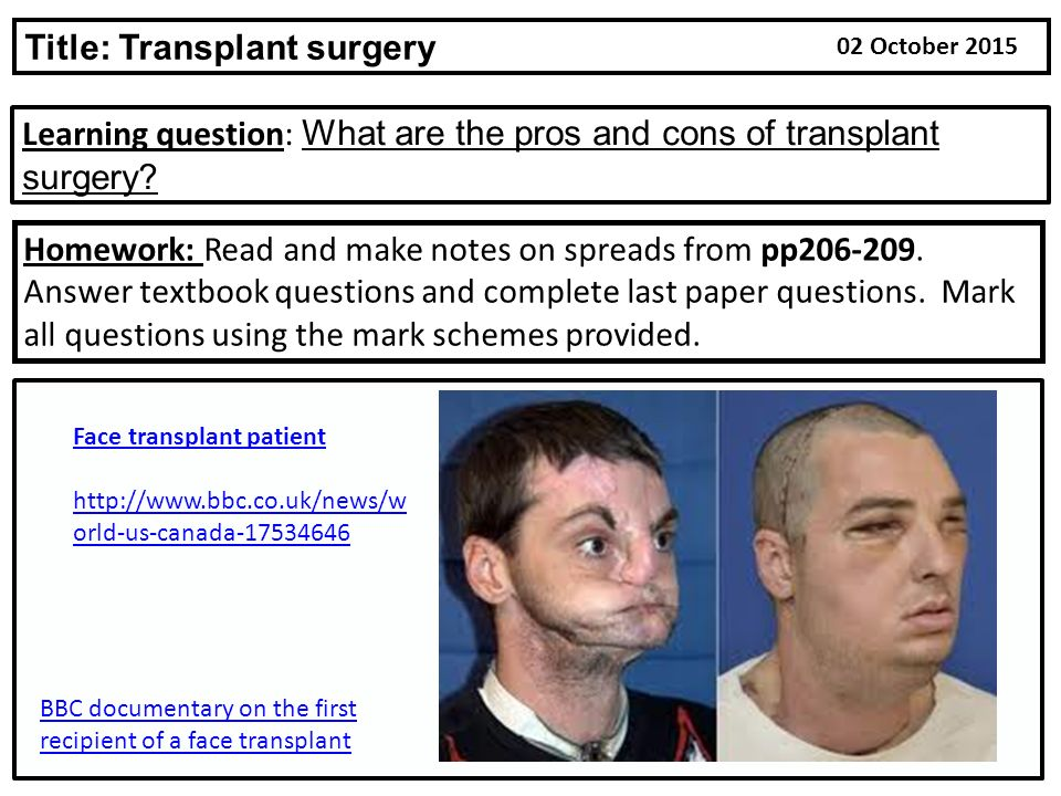 face transplant essay Face transplants: in pictures a successful face transplant in a 30-year-old chinese man who was attacked by the bear in october 2004 some.
