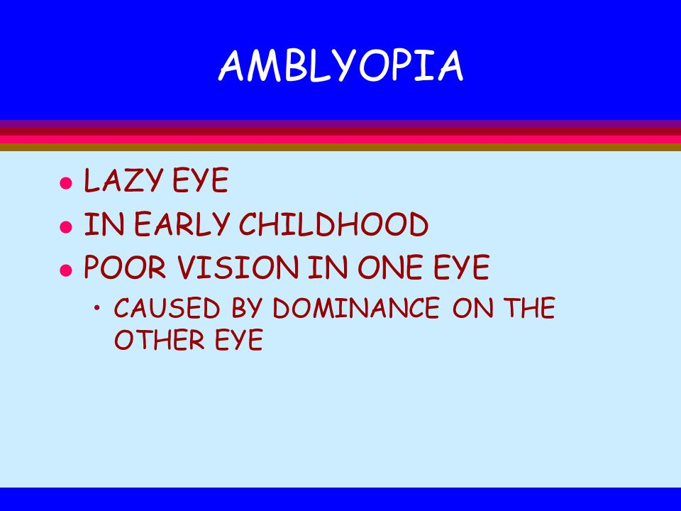 AMBLYOPIA LAZY EYE IN EARLY CHILDHOOD POOR VISION IN ONE EYE
