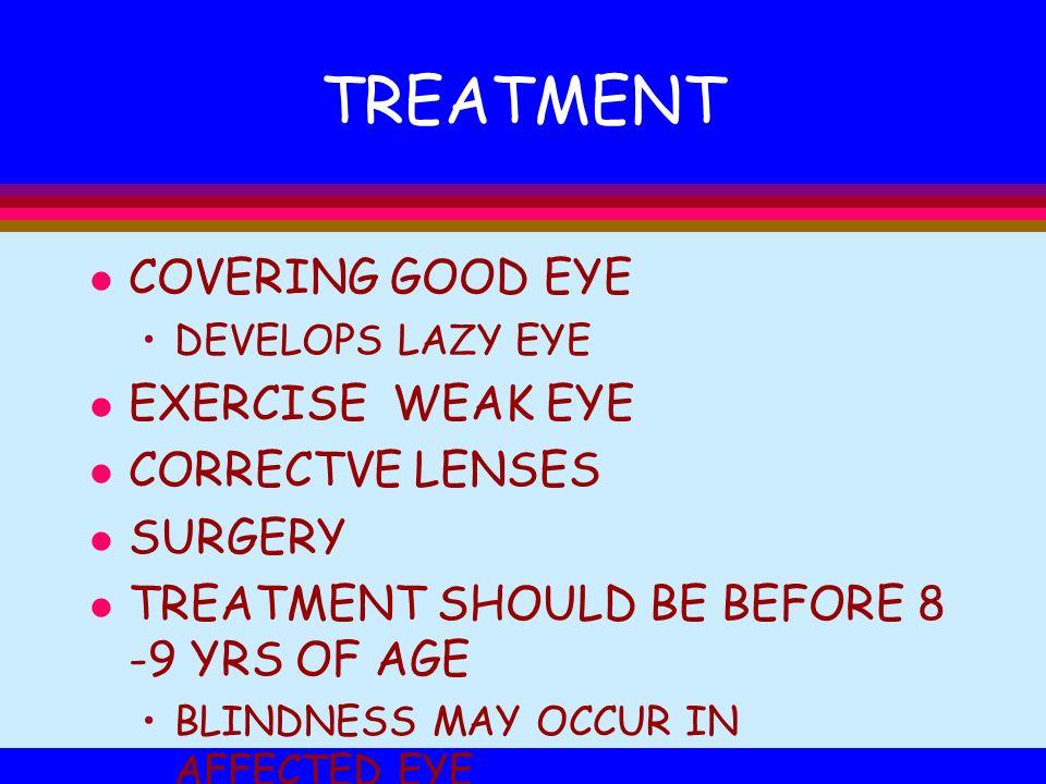 TREATMENT COVERING GOOD EYE EXERCISE WEAK EYE CORRECTVE LENSES SURGERY