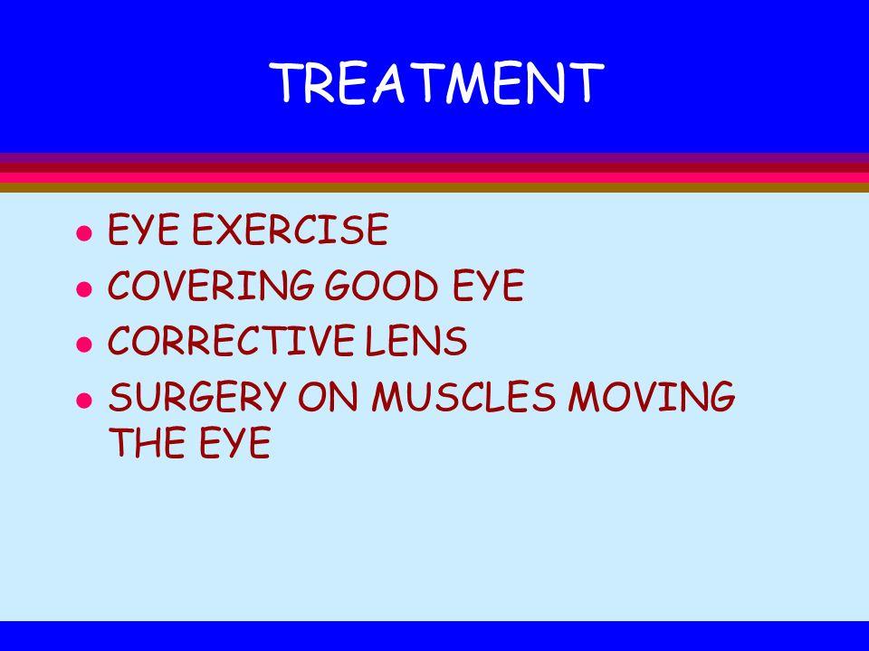 TREATMENT EYE EXERCISE COVERING GOOD EYE CORRECTIVE LENS