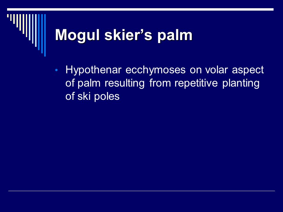 Mogul skier's palm Hypothenar ecchymoses on volar aspect of palm resulting from repetitive planting of ski poles.
