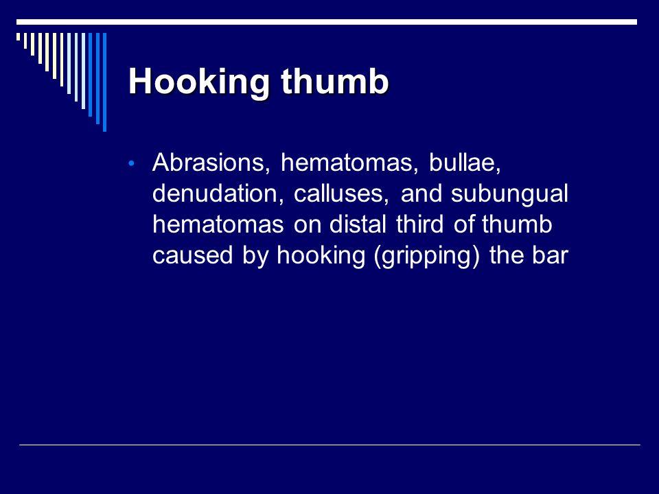 Hooking thumb