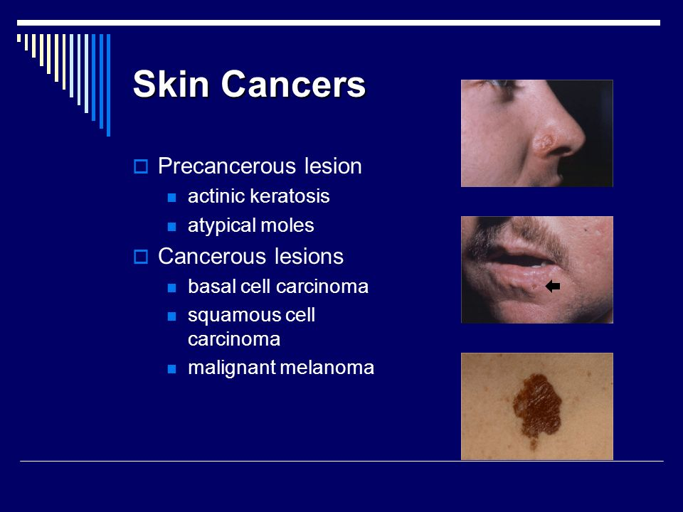 Skin Cancers Precancerous lesion Cancerous lesions actinic keratosis