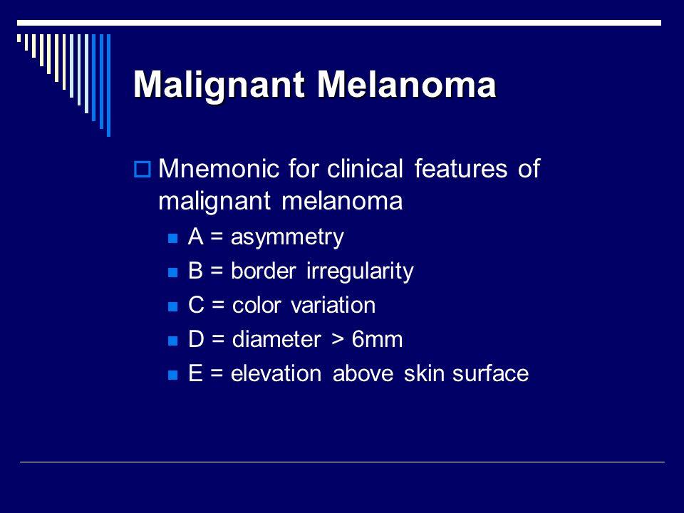 Malignant Melanoma Mnemonic for clinical features of malignant melanoma. A = asymmetry. B = border irregularity.