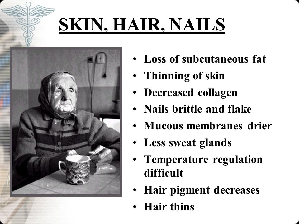 SKIN, HAIR, NAILS Loss of subcutaneous fat Thinning of skin