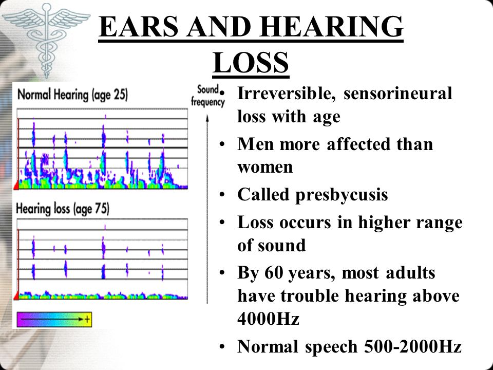 EARS AND HEARING LOSS Irreversible, sensorineural loss with age