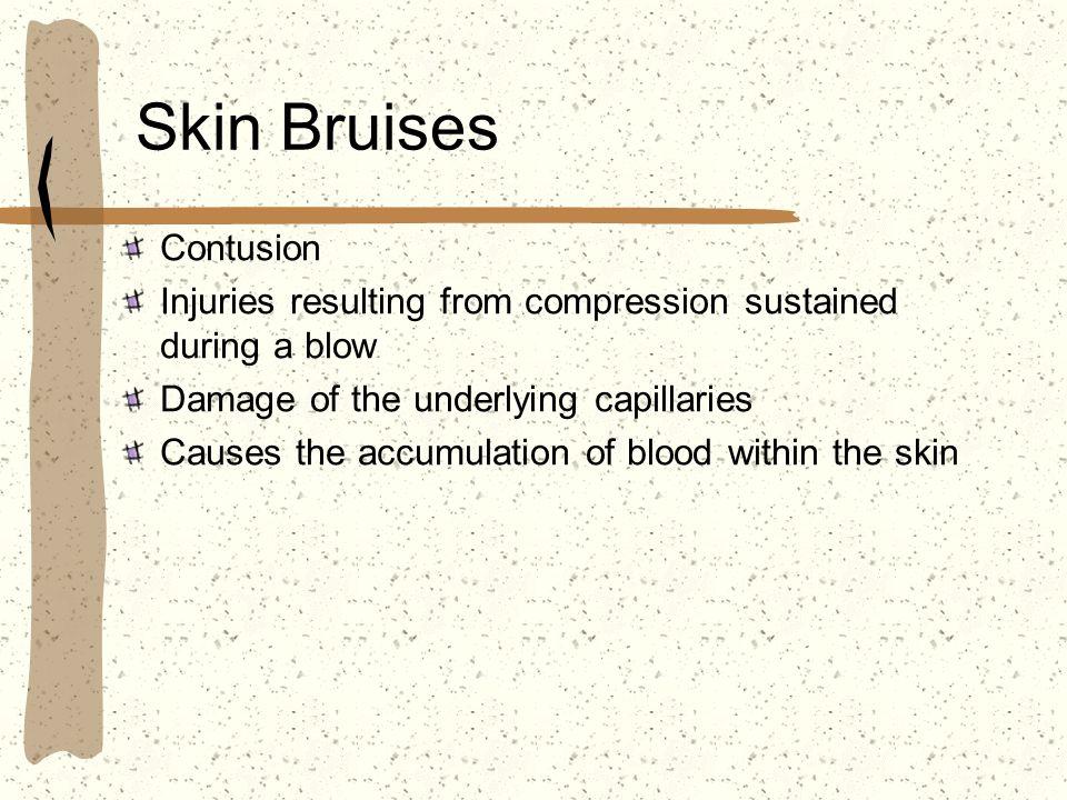 Skin Bruises Contusion