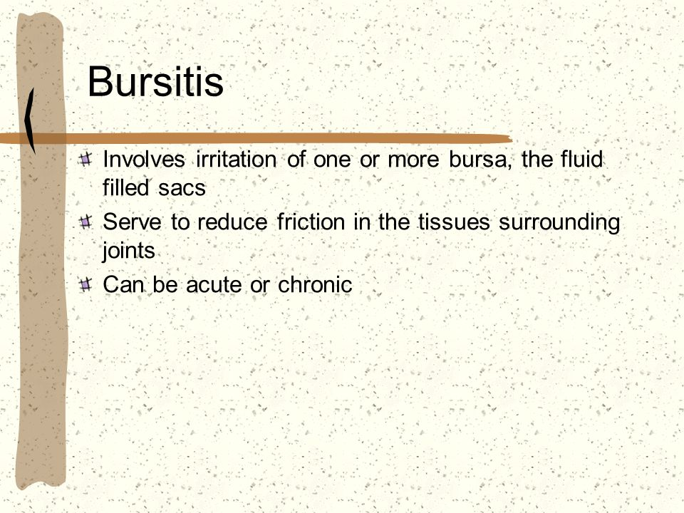 Bursitis Involves irritation of one or more bursa, the fluid filled sacs. Serve to reduce friction in the tissues surrounding joints.