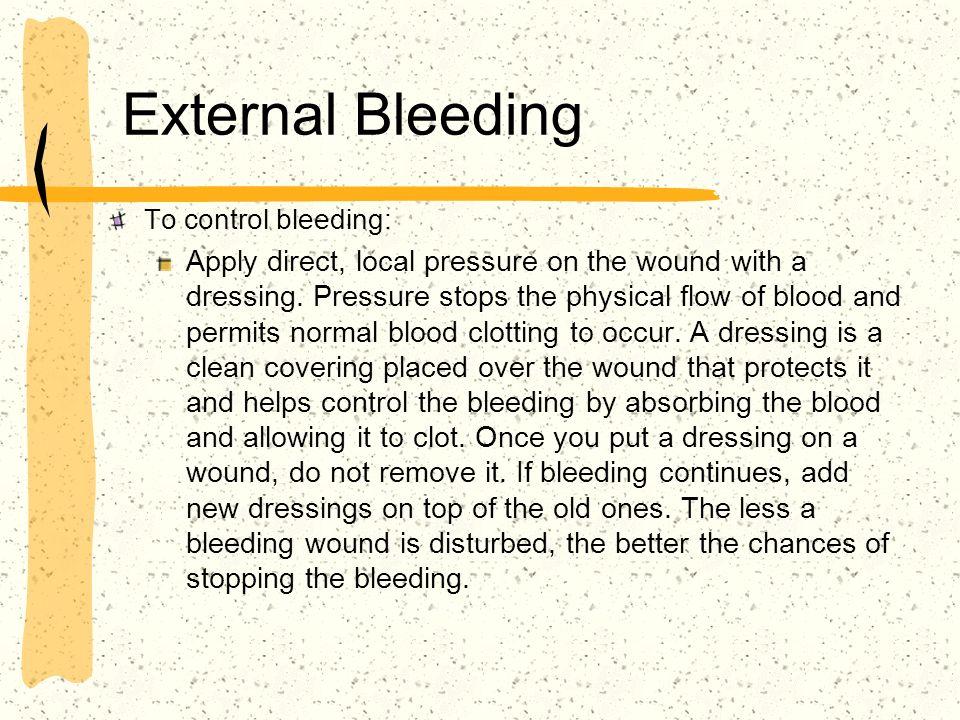 External Bleeding To control bleeding: