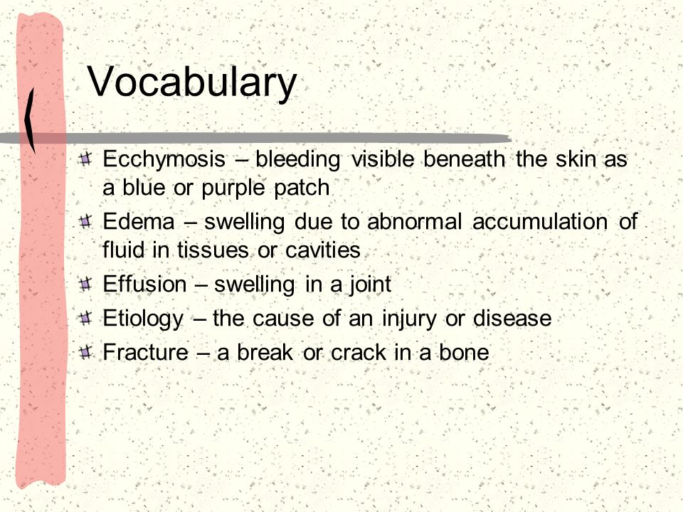 VocabularyEcchymosis – bleeding visible beneath the skin as a blue or purple patch.