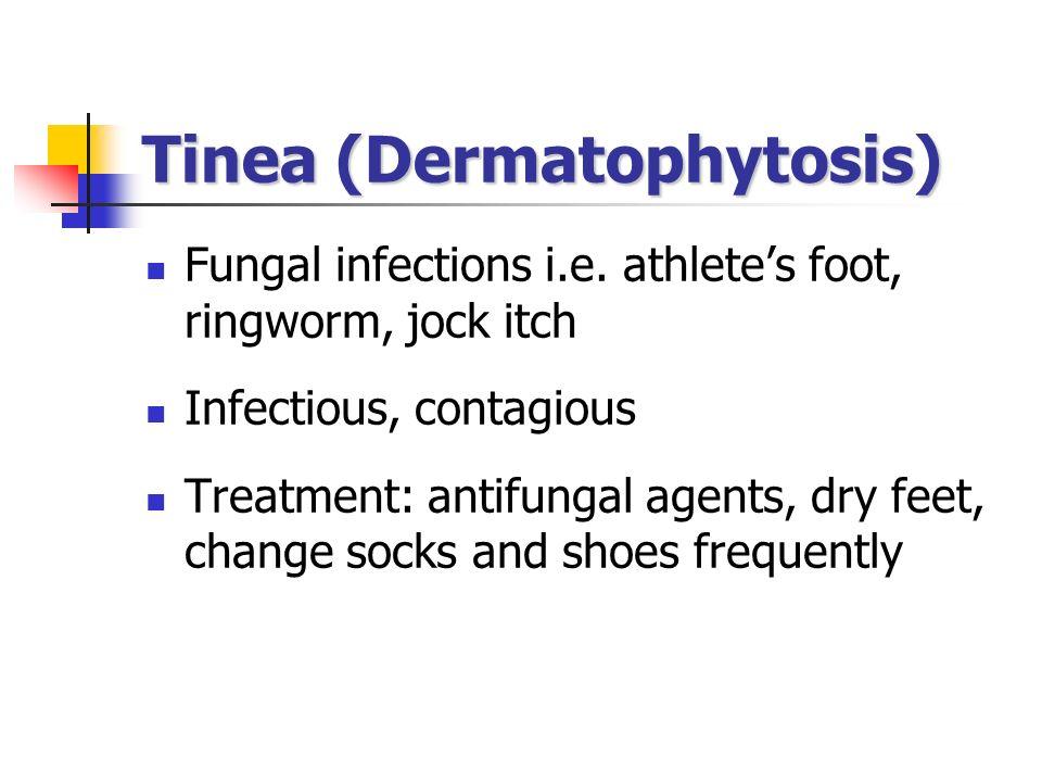 Tinea (Dermatophytosis)