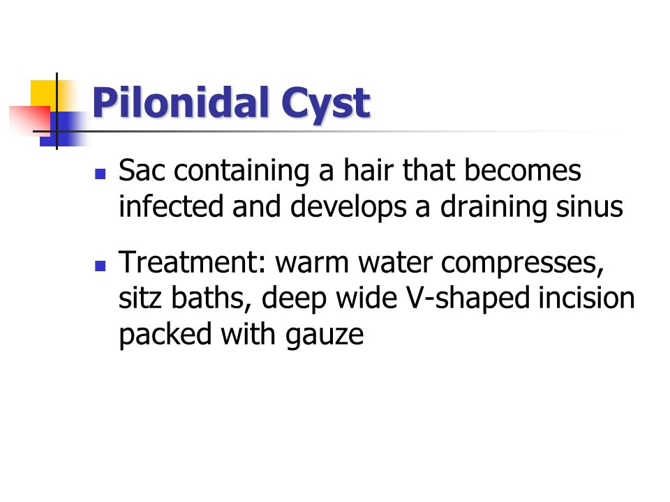 Pilonidal Cyst Sac containing a hair that becomes infected and develops a draining sinus.