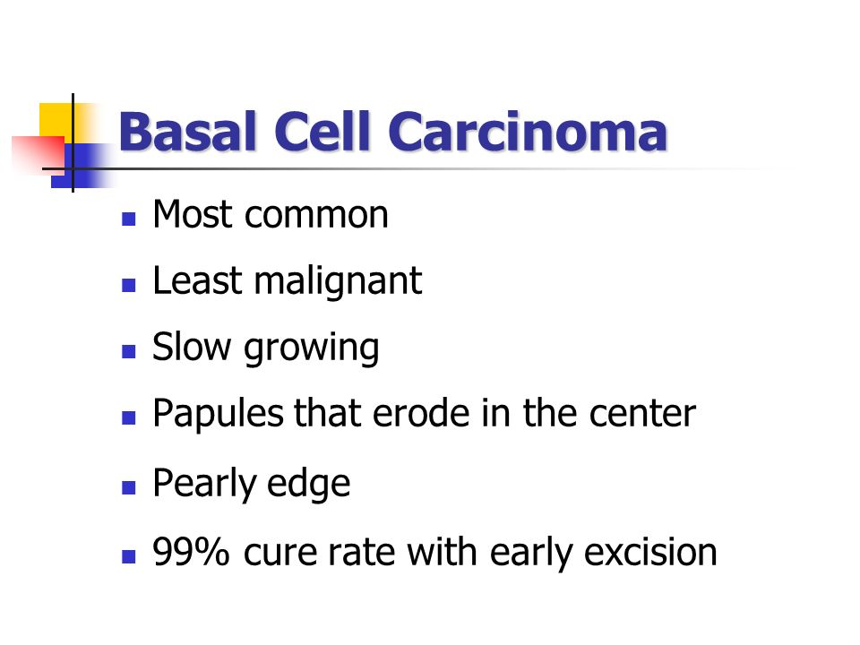 Basal Cell Carcinoma Most common Least malignant Slow growing