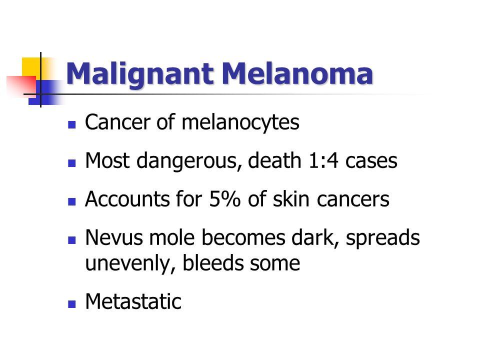 Malignant Melanoma Cancer of melanocytes
