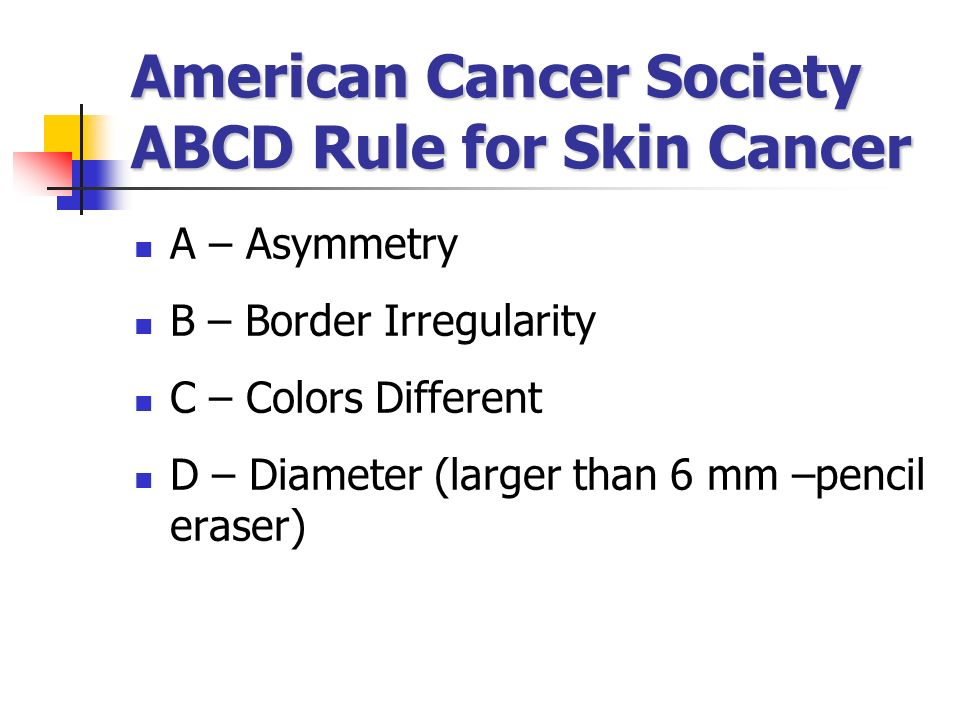 American Cancer Society ABCD Rule for Skin Cancer