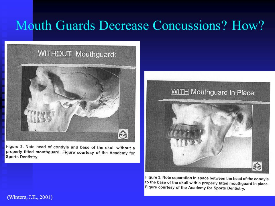 Mouth Guards Decrease Concussions How